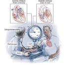 asuhan keperawatan pasien dengan hipertensi, askep hipertensi, pengertian hipertensi, penyakit hipertensi