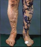what is varicose veins caused from