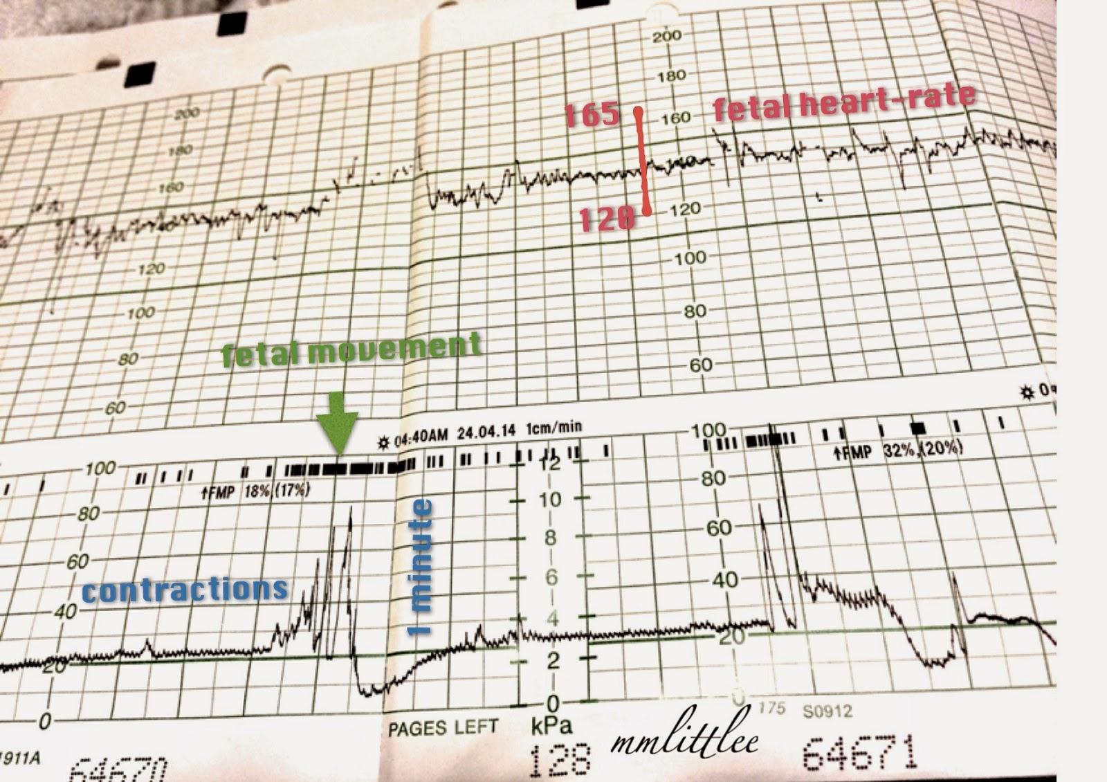 Fetal heart rate normal values images fetal heart rate normal values fetal heart rate the top part fetal heart rate the top part source abuse report nvjuhfo Choice Image