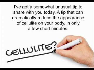 Cellulite Factor Overview, Cellulite, weight loss, fitness in gym, fitness gym,