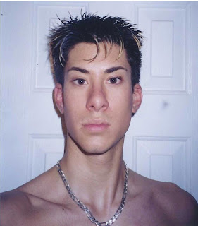 Pre-surgery ... Justin Jedlica before his rhinoplasty
