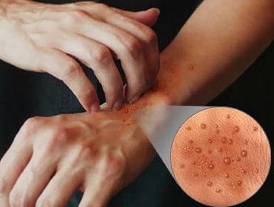 dermatita de contact cauzele sughitului