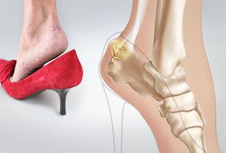 Her bunion sore red huge big she wear heels uk | Healthy Tips