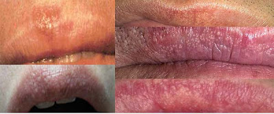 Fordyce Spots on Lips