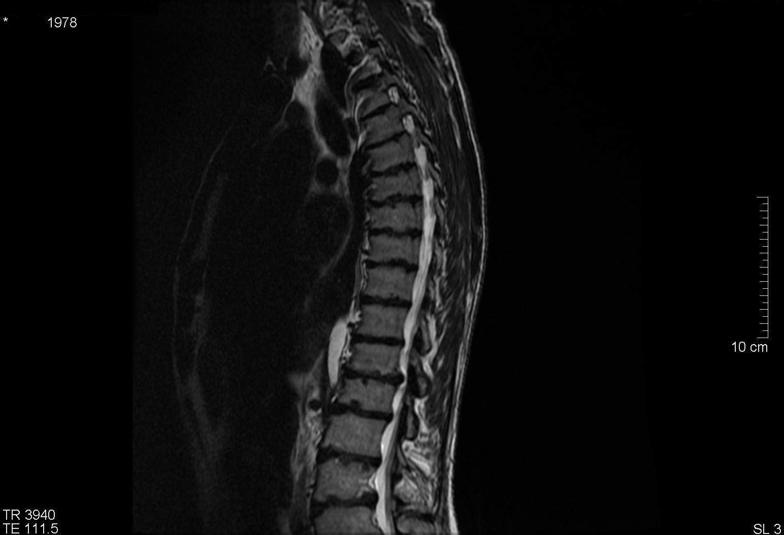 Osteochondrosis of the cervical spine