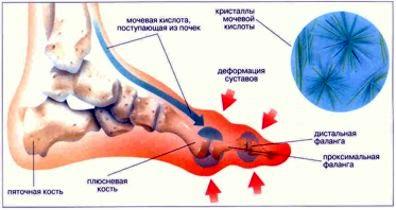 могут ли болеть суставы из за заболеваний печени