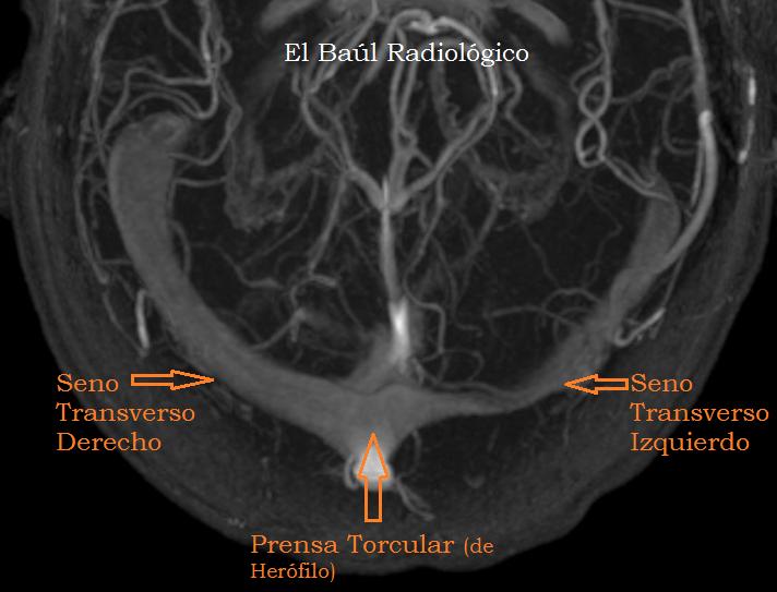 El Baúl Radiológico: 2) GRANULACIONES ARACNOIDEAS EN LOS SENOS ...