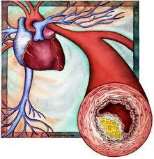 Tratament naturist pentru cei care sufera de hipercolesterolemie