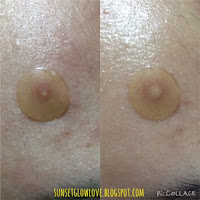 3M Nexcare Acne Patch before and after