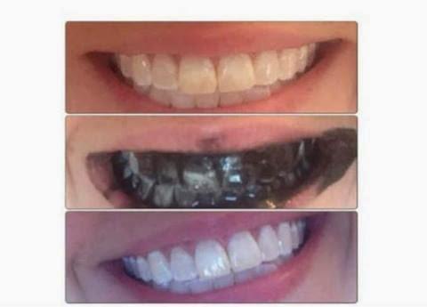 «الفحم» لتبييض الأسنان