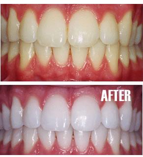 cara memutihkan gigi, tips memutihkan gigi