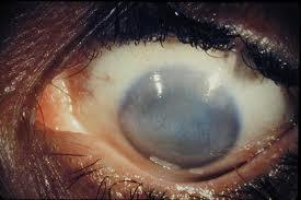se ve le resultado final del tracoma, ceguera