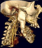 Imagén CT paciente real