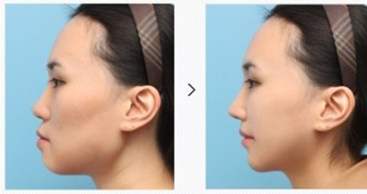 Plastic Surgery in Korea. We provide high quality medical service.: Is ...