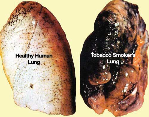 how to break tobacco addiction