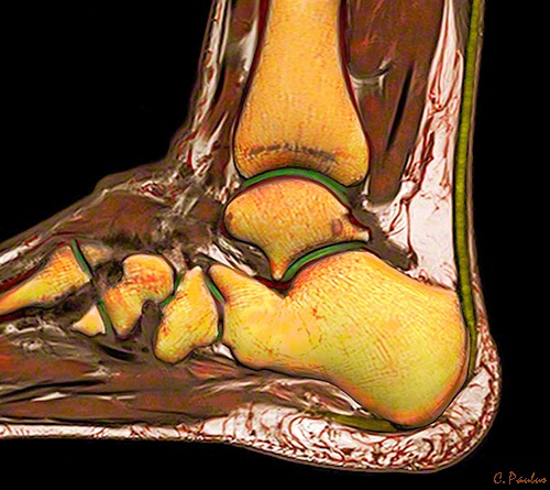 3-D Color HD MRI Images of the Ankle Joint