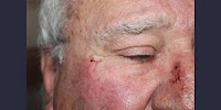 South Africa: Three elderly people beaten during home invasion
