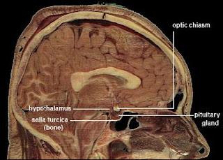 Bradley Voytek & Timothy Verstynen - Zombie hypothalamus