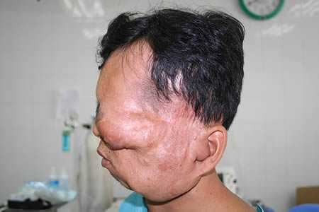 most horrible weirdest strangest diseases Neurofibromatosis Huang Chuncai massive face tumor