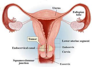 Image Cara Menghilangkan Kanker Serviks