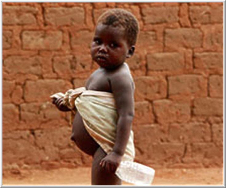 overnutrition and undernutrition Energy overnutrition is common in developed countries like the united states  undernutrition is the form of malnutrition that occurs when you.