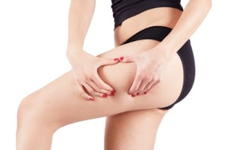 Cellulite, how to prevent it