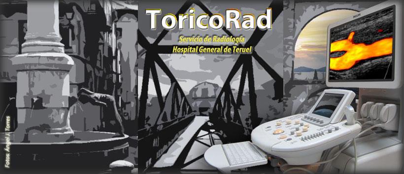 RadioTur