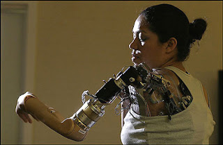Prosthetic Robotic Arm