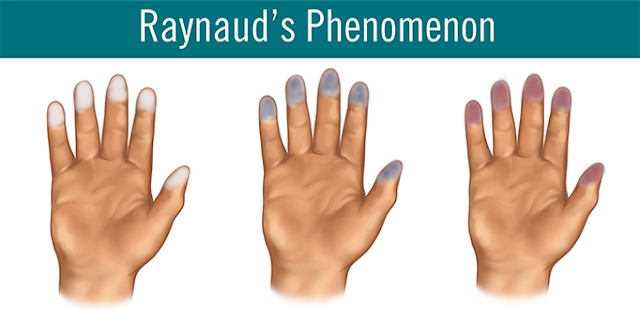Raynaud's Phenomenon Causes, Symptoms, Diagnosis, Treatment, Prevention, Home Remedies