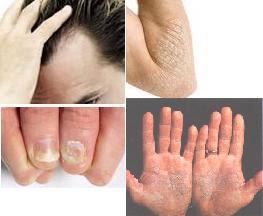 La eccema de la piel de la oreja