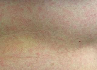Falso: Zika causa sequelas neurológicas em crianças de 7 anos