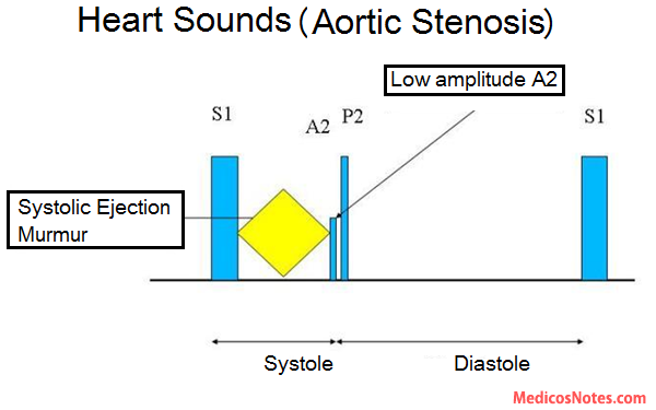 Heart Sounds And Murmur In Aortic Stenosis