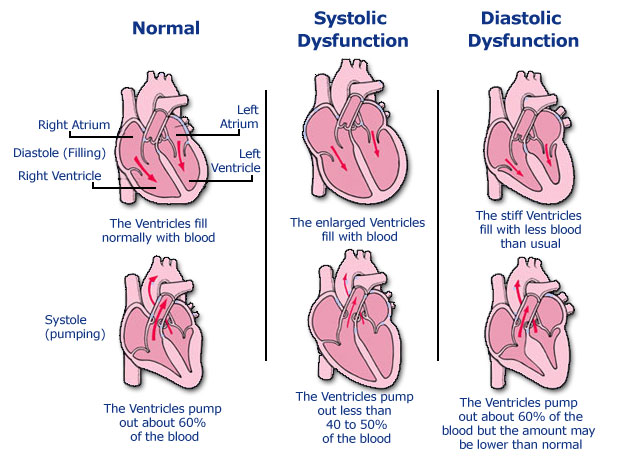 Circulatory Failure Insufficiency 64