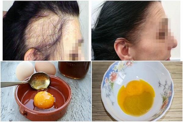 Stimulează creșterea părului cu această rețetă-minune din doar trei ingrediente