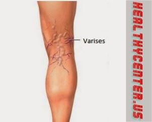 5 Vein Solutions to Treat Your Varicose Veins