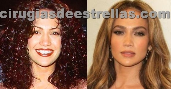 jennifer lopez antes y despues