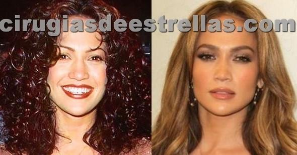 Jennifer Lopez antes y después de la rinoplastia
