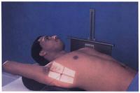 transthoracic lateral humerus trauma