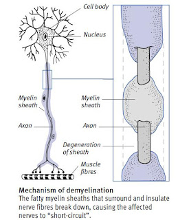 Mechanism of demyelination