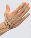 Пальпация кисти: кости запястья и лучезапястного сустава.