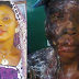 GRAPHIC PHOTO: Beautiful Lady Bathed With Acid By Ex-Lover Cries Out - 'Help! Don't Let Me Die'