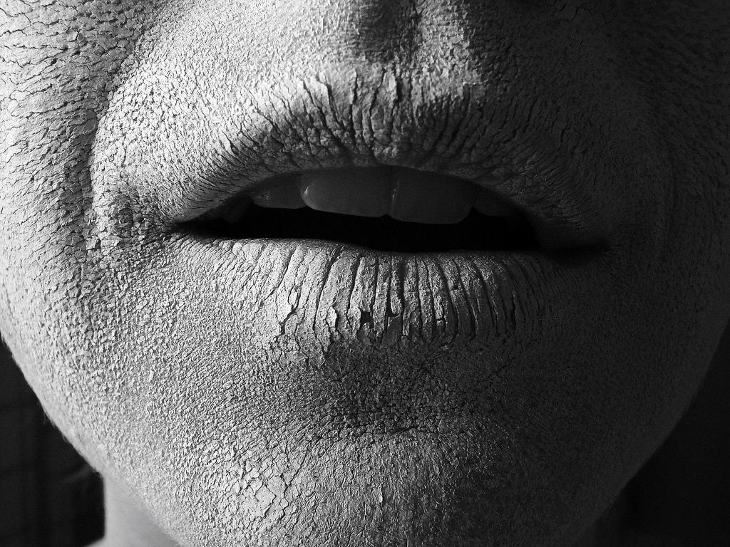 Morue moderne souci beaut peau s che d shydrat e que faire - Demangeaisons jambes apres douche ...