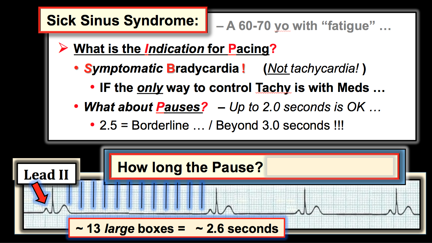 figure1 slide discussing indications for pacing in sick sinus syndrome with explaining the importance of pause duration