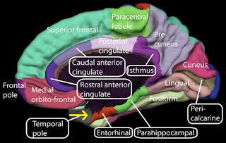 "Brain"""