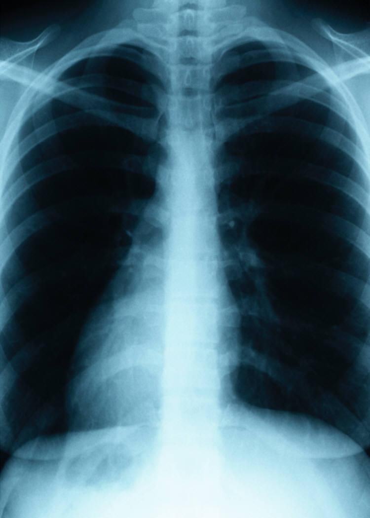 Twu Health Studies Lung Cancer Awareness