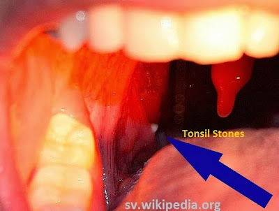 banish tonsil stones treatment