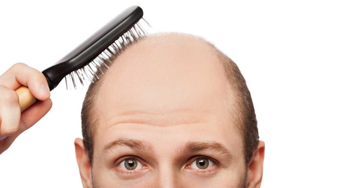 Fortísimo la alopecia las revocaciones