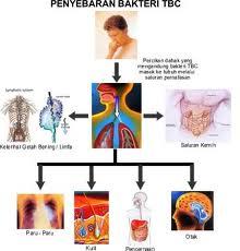 mengobati tbc secara alami