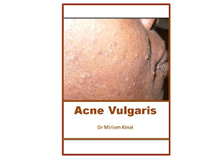 Acne Vulgaris Book