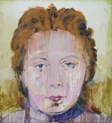 gemaltes Abbild eines Herzkranken mit charakterischen Symptomen im Gesicht